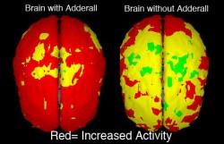 adderall withdrawal symptoms